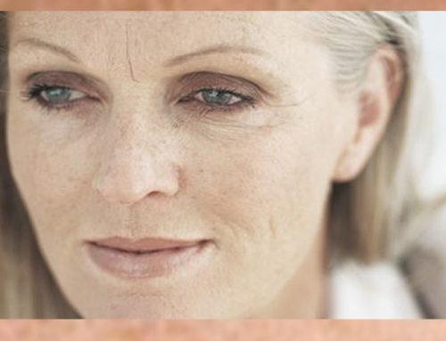 ¿Piel seca en la menopausia? Te doy algunos trucos